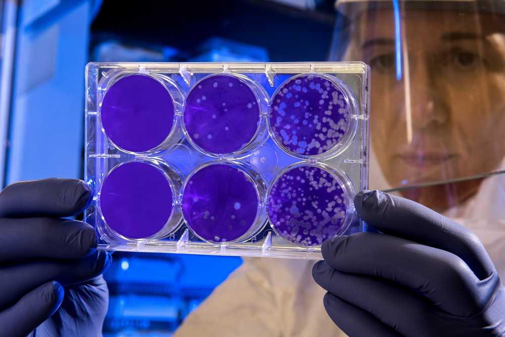 Istituto-Superiore-Sanità-coronavirus